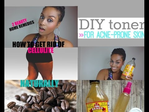 HOW TO GET RID OF CELLULITE NATURALLY/ APPLE CIDER VINEGAR FACE TONER