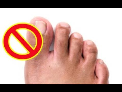 How to Remove a Ingrown Toenail Completely Naturally without any Surgical Procedure