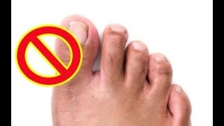 How To Remove A Ingrown Toenail Completely Naturally Without Any Surg