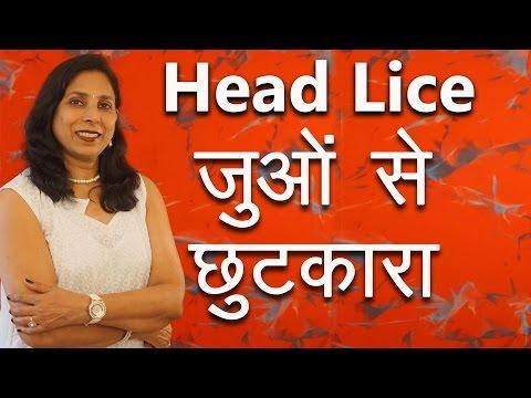 जुओं से छुटकारा कैसे पाएं | How to remove Head Lice with Home Remedies | Ms Pinky Madaan