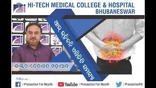 Colon Cancer Symptoms and Treatment  Dr  Gourav Das from