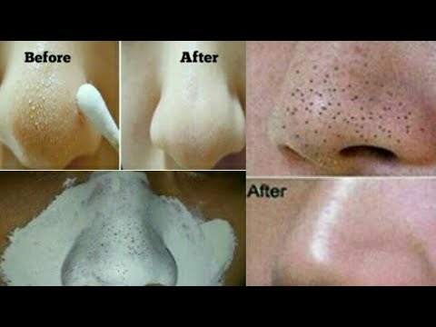 HOW TO REMOVE BLACKHEADS & WHITEHEADS-REMOVE BLACKHEADS /WHITEHEADS FROM NOSE/FACE NATURALLY AT HOME