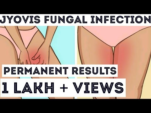NO MORE FUNGAL INFECTION | HOW TO GET RID OF ANY SKIN INFECTION |BestHacks| Dr. Raj Satpute | JYOVIS