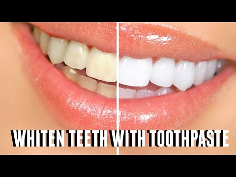 HOW TO WHITEN TEETH WITH TOOTHPASTE ♡