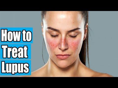 How to Treat Lupus | Lupus Diagnosis