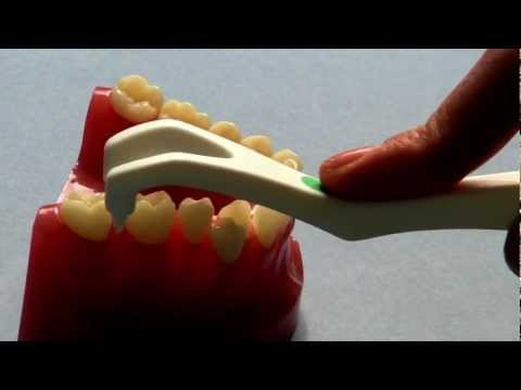 How to use Gumsaver - Treat Gum Disease
