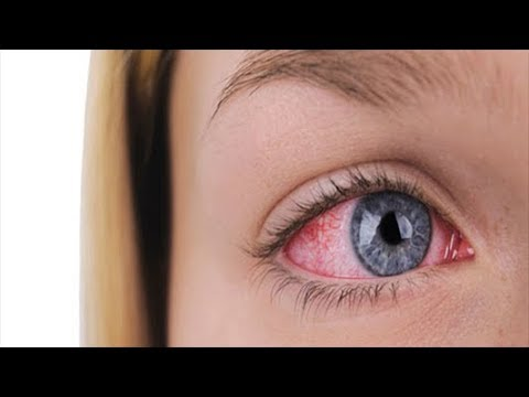 Relieve Pink Eye Fast In A 100% Natural Way With These Home Remedies