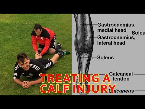 Top Tips for Treating a Calf Strain