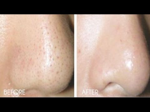 How to Get Rid of Blackheads & Whiteheads At Home in 7 Days