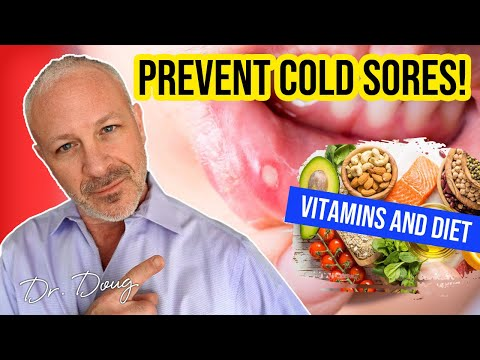 Natural Cold Sore Prevention: Vitamins and diet!