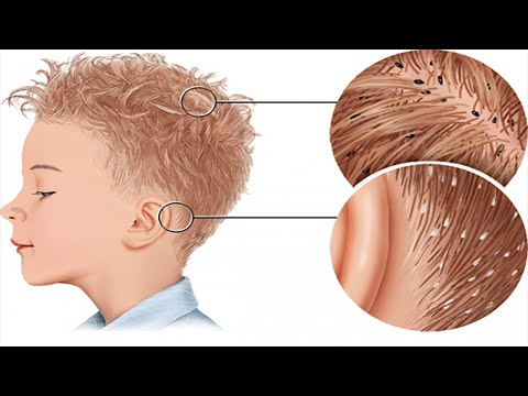Rid of Lice | How to Get Rid of Lice