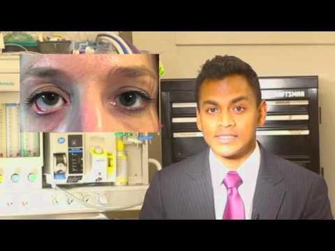 Eyelid pulled down after blepharoplasty |Denver Blepharoplasty Surgeon