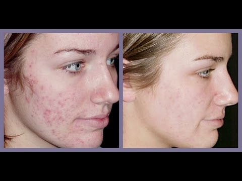 How To Get Rid of Acne Dark Spot Scars-Treat Acne Marks At Home/Blemishes ?