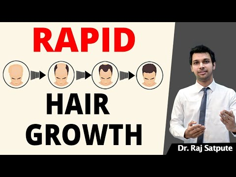 100% GUARANTED How To STOP HAIR LOSS NATURALLY & REGROW HAIR FASTER Without MEDICINES   Men & Women