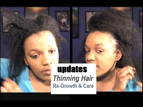My Natural Hair Is Growing Back After The Thinning | Tips & Treatment For Hair Growth In Women