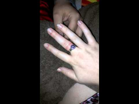 Trying to get a ring off a swollen pregnant finger