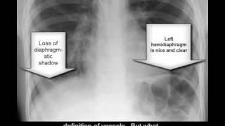 Chest X Ray Pneumonia