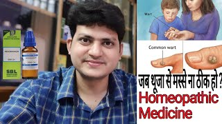 Download Warts ! Effective Homeopathic Medicine ! When Thuja Not effective On Warts ? What to do ?? Video