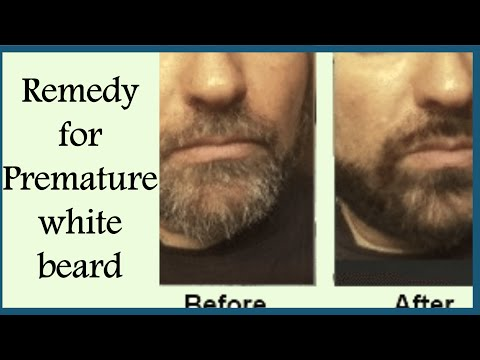 Magical Remedies For PREMATURE GREY BEARD/Remove WHITE HAIRS On Face Permanently/Grey Hair Remedies