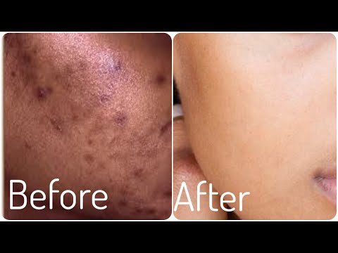 7 days Skin repair challenge । Remove Pimples, Dark marks, Large pores and Get Clear Glowing skin