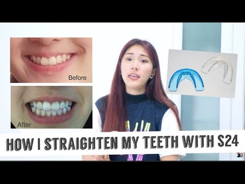 HOW I STRAIGHTEN MY TEETH WITH ONLY $24 + Giveaway || FATFOAL