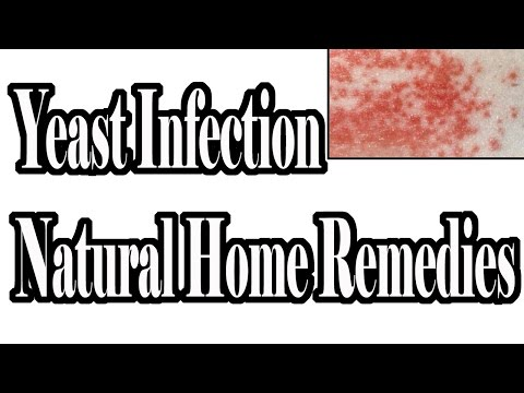 Yeast Infection Natural Home Remedies : How To Cure Yeast Infection Naturally