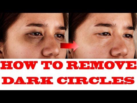 how to remove dark circle in abobe photoshop cs6,cs5,cs4,cs3 | etech