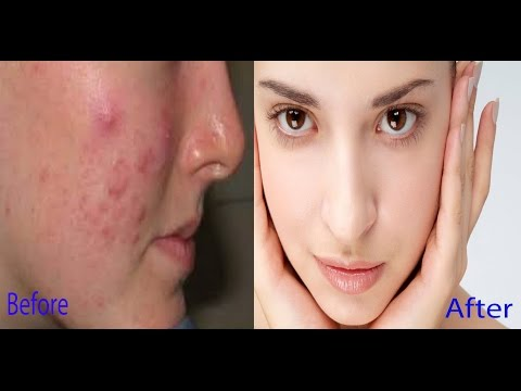 How to remove pimple dark spots | 3 Home Remedies (100% Works) With Results