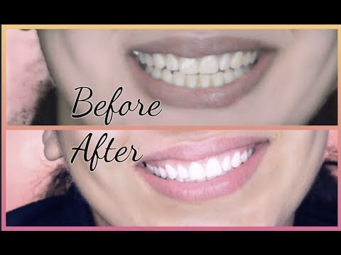 Teeth Whitening At Home In 10 Minutes || How To Whiten Your Yellow Teeth Naturally || 100% Effective
