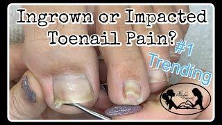 Download 👣 Impacted or Ingrown Toenail Pedicure Tutorial 👣 Video