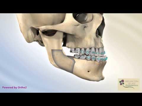 BSSO Mandibular Setback - Transcortical