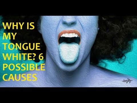 Why Is My Tongue White? 6 Possible Causes
