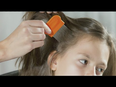 How to prevent, treat head lice