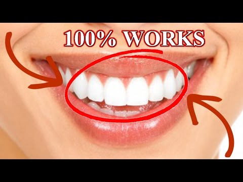 NATURAL WHITE TEETH in 3 min TEETH WHITENING HOME REMEDY how to whiten teeth दांत घर पर दांत