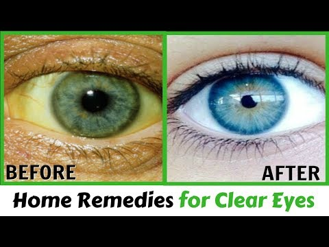 Eye Wash Solution Home Remedy | Home Remedies for Clear Eyes