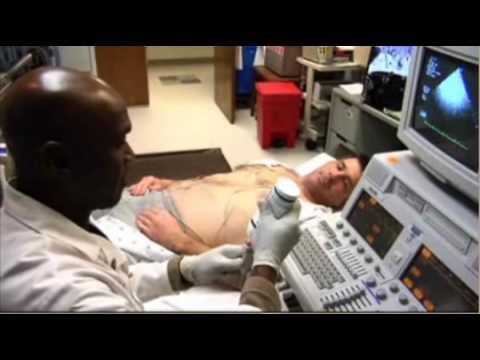 echocardiogram-stress-test-treadmill.mov