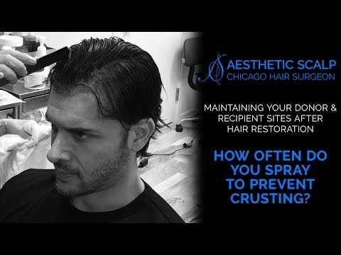 HAIR REDESIGN: Four Days After Hair Restoration Procedure - Preventing Crusting