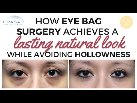 Eye Bags in Young People - Achieving Natural-Looking Results while Avoiding Hollowness