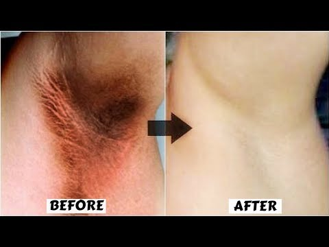 How To Whiten Dark Underarms Permanently In Just 20 Minutes| Using Colgate & Rice Flour| 100% Works