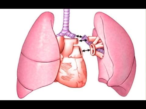 Idiopathic Pulmonary Fibrosis: Lung Transplants