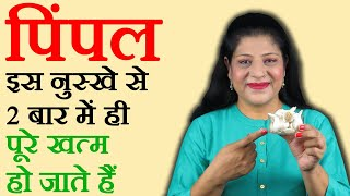100% Working Pimple Treatment | Acne Treatment | Home Remedies for Pimples in Hindi