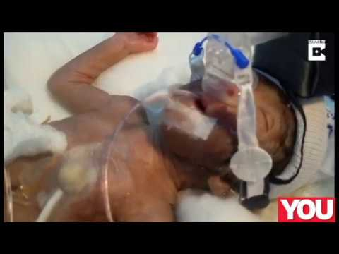 World's smallest baby to undergo heart surgery had the odds stacked against him – and he survived