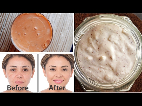 Remove Dark Spots, Black Spots and Acne in Just 3 Days 100% Work | Get Rid of Dark Spots