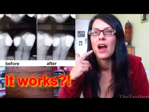 Oil Pulling Saved my Teeth? (Teeth doomed to root canals are healing!)