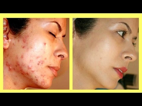 TOP 4 WAYS How To Get Rid Of Acne Scars overnight naturally at home