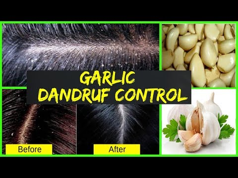 How to Use Garlic For Dandruff Control - Use of Garlic to Get Dandruff Free Hair