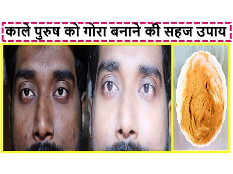 Face Mask For MEN / Man Get FAIR BRIGHT SPOTLESS Skin In Hindi