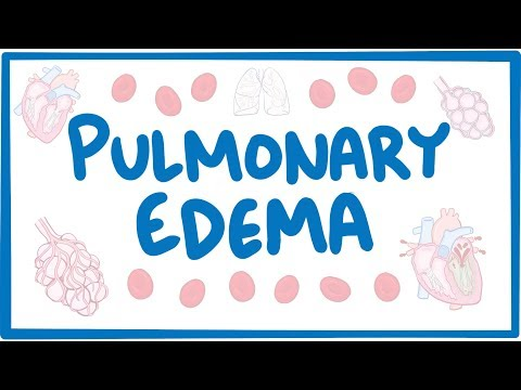 Pulmonary Edema - causes, symptoms, diagnosis, treatment, pathology