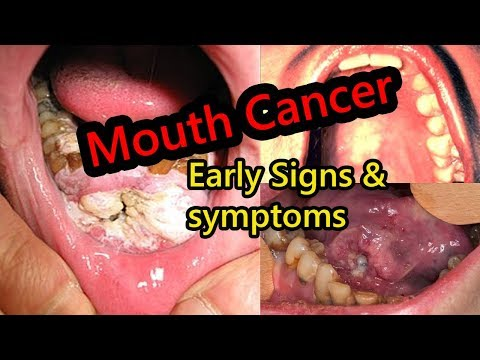 Early Warning Signs of Mouth Cancer Most People Ignore - PakVim net