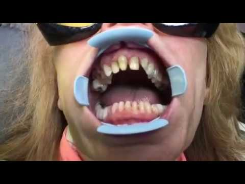 Step-by-step guide… How do veneers bond to the teeth..Before and after...